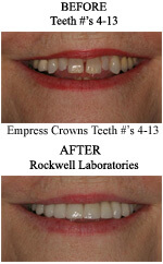 Tallahassee Cosmetic Dentistry